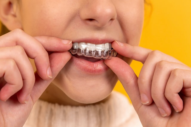 The Benefits of Teeth Whitening